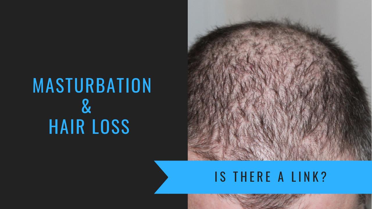Masturbation and balding